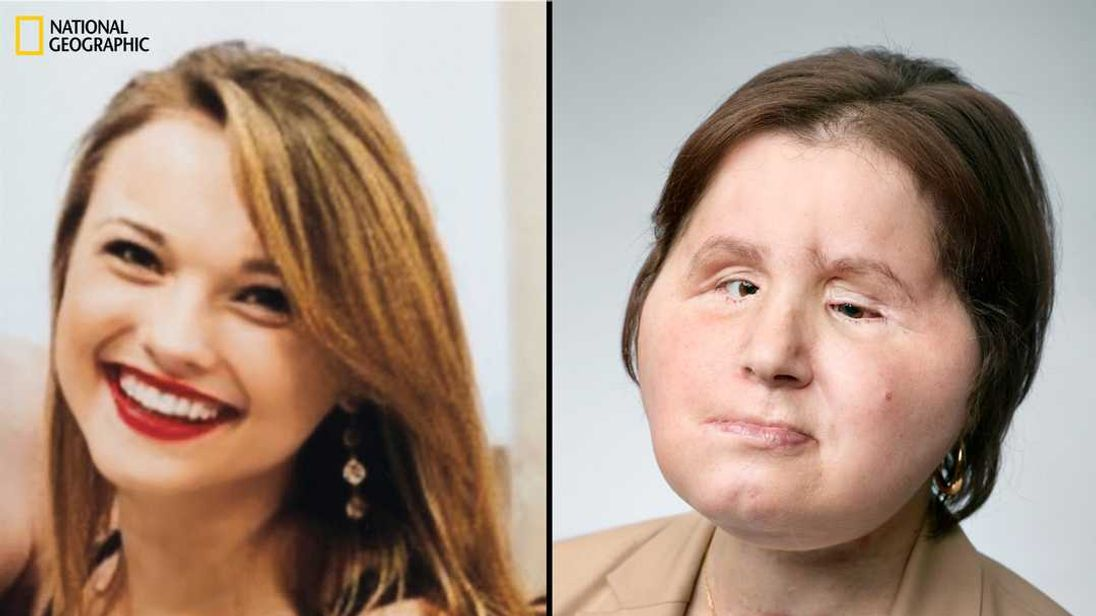 Youngest American Woman To Receive Full Face Transplant, One Year Post-Op
