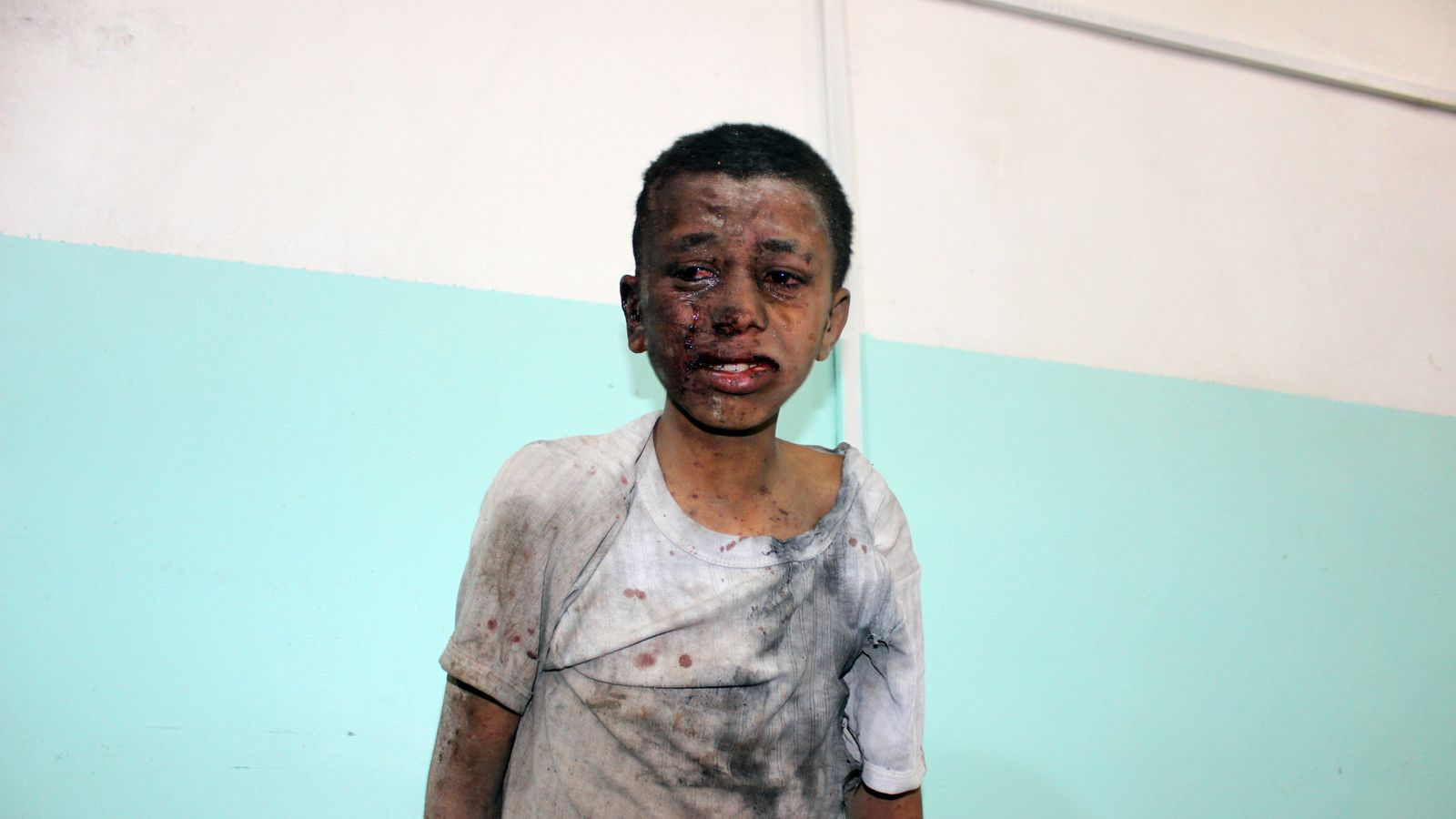 Airstrike on children's bus is 'a low point' in Yemen war - UNICEF