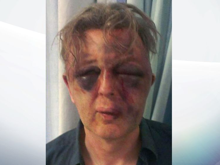 Paul Kohler was attacked at his home in Wimbledon, south London