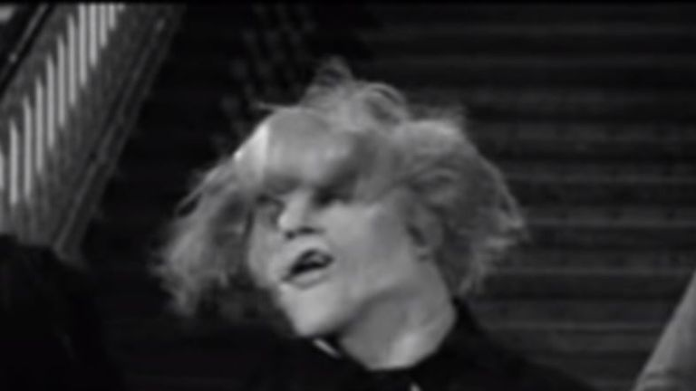 David Lynch directed Sir John Hurt in the 1980 film
