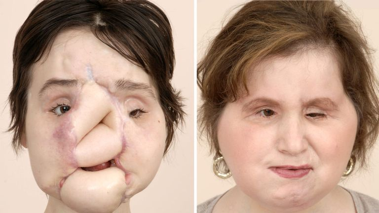 Ms Stubblefield underwent several surgeries before her transplant  Pic: Cleveland Clinic