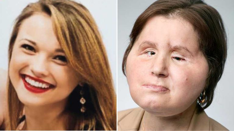Katie Stubblefield is the 40th person to undergo the procedure. Pic: National Geographic