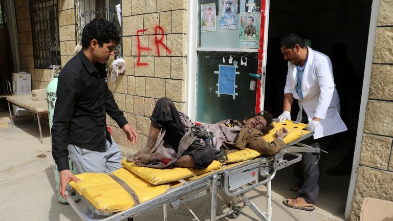 A doctor treats children injured by an airstrike in Saada