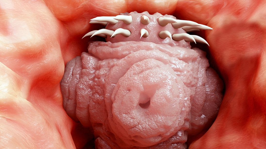 Head of a tapeworm. File pic