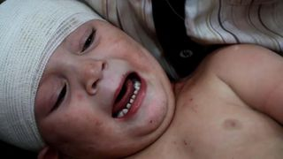A child who is among the thousands affected by bombing in Aleppo