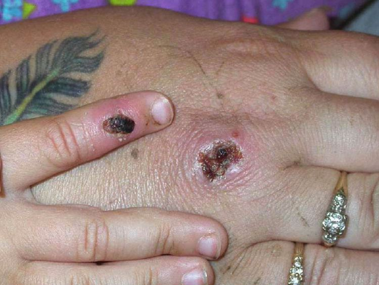 First UK case of monkeypox identified