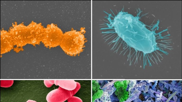 The Human Microbiome Project, launched by NIH in 2007, provided a glimpse of the microbial diversity of healthy humans and is exploring the possible relationship between human diseases and the microbiome. Credit: Jonathan Bailey, NHGRI