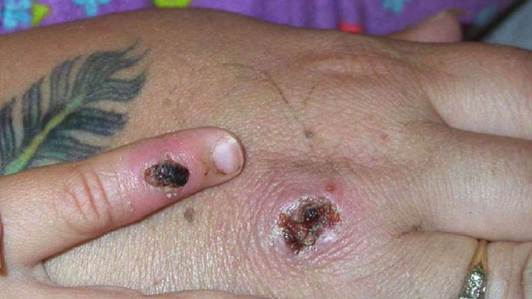 Monkeypox symptoms include a rash, chills, fever and exhaustion