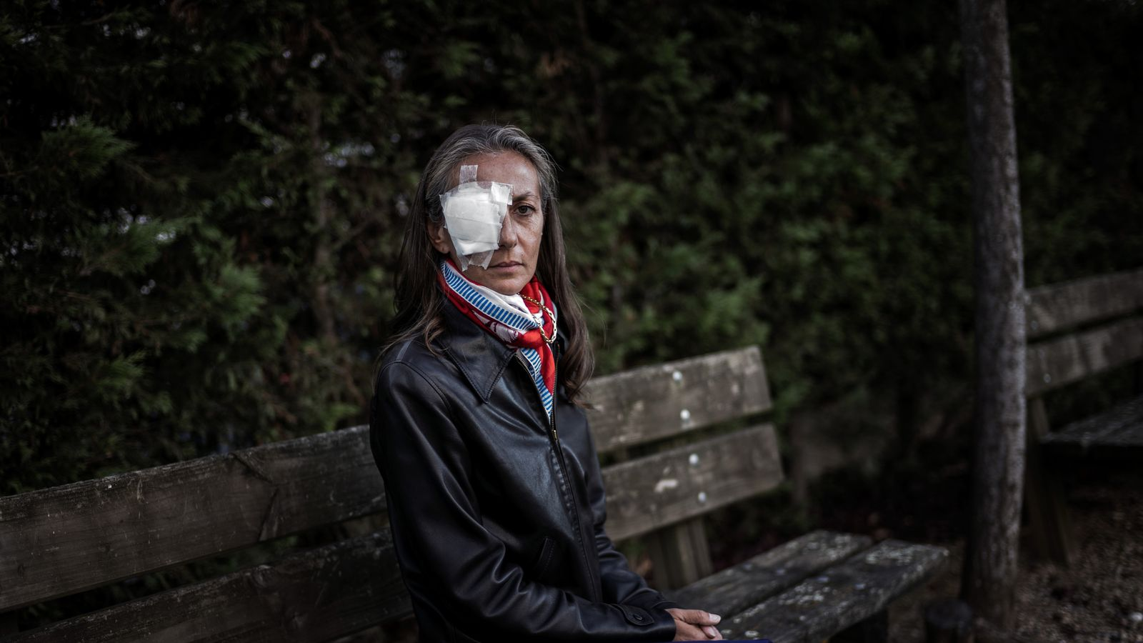 Woman Blinded By Golf Ball At Ryder Cup People Just Took