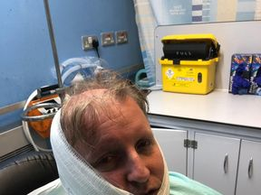Mike Glover-Johnson posts picture of himself on Facebook after he is attacked by acid