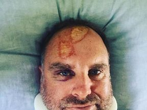 Matthew Hayden said he 'truly dodged a bullet'. Pic: haydos359
