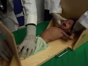 A Yemeni baby cries in hospital