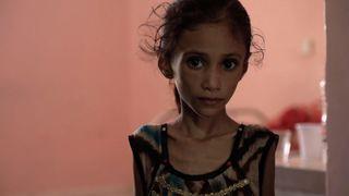 Anissa Abdulmoniem is suffering from severe malnutrition