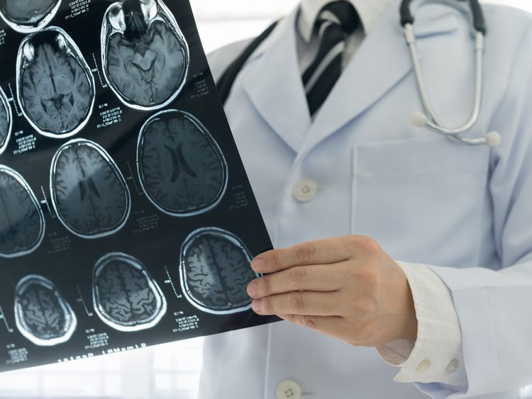 Therapy for 'mad cow-like' brain disease approved