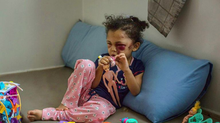 Buthaina, a five year old girl who was a victim of an alleged Saudi airstrike