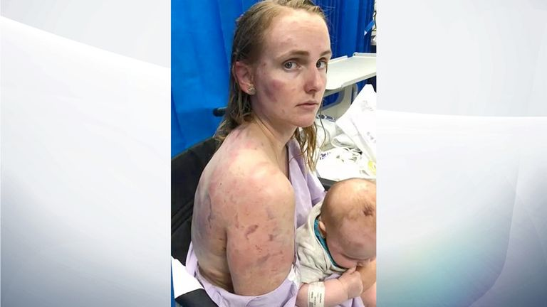 Fiona Simpson was left covered in bruises. Pic: Facebook