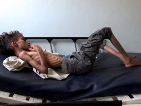 The UN says up to 14 million people are facing famine