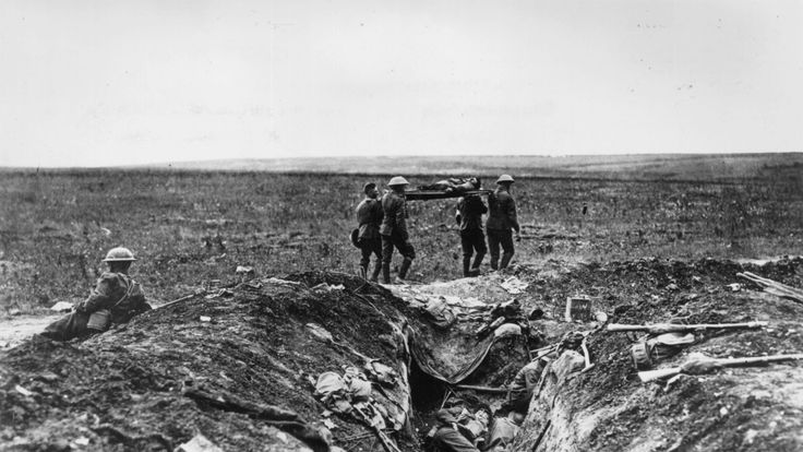 Millions died in the trenches, with many millions more injured