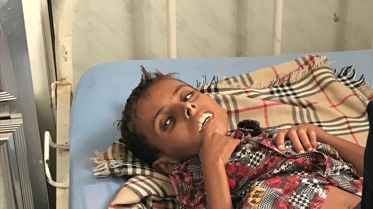 2681b01e7 Yemen: 10-year-old boy who weighed just 10kg dies with country on ...