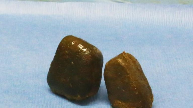 Cubical feces in the wombat's intestine. Pic: Georgia Tech