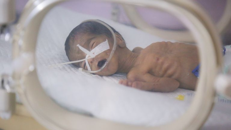 Half of Yemeni children under the age of 5 are chronically malnourished. This baby is being treated at Al Thawra hospital. Pic: Unicef