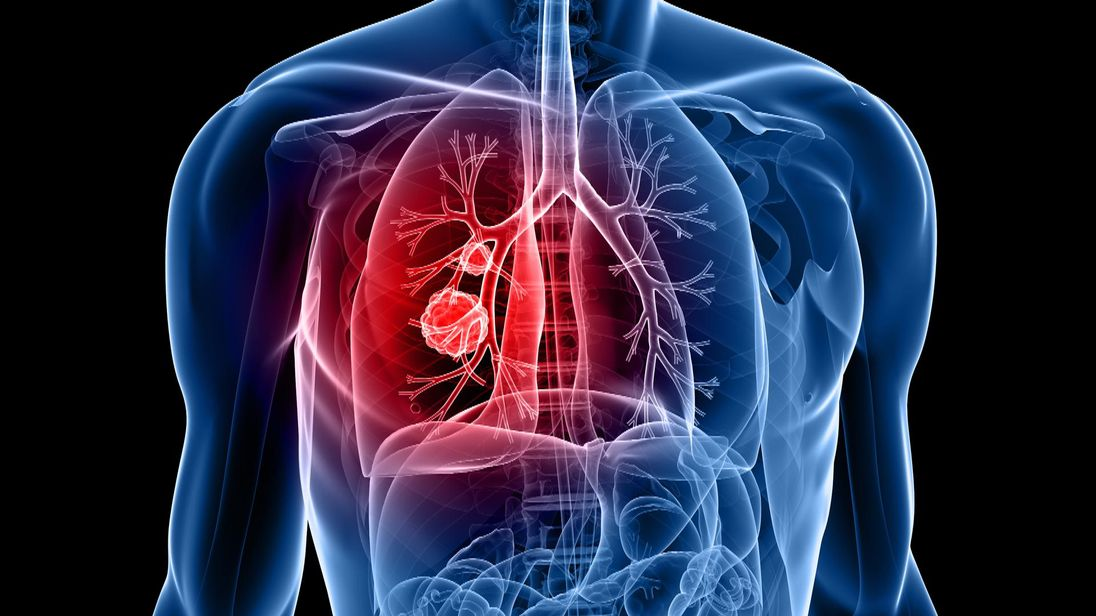 Lung cancer is the UK's biggest cancer killer