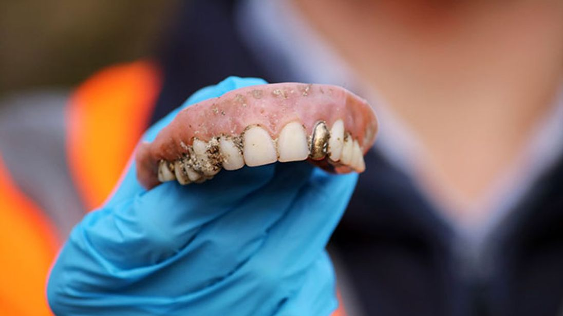 The false teeth, with a gold tooth, were found at a water works in Bristol. Pic: Wessex Water
