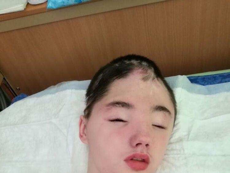 Vanya Krapivin, 16, lost most of his frontal skull bone in the attack