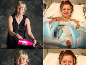 Corinne Hutton lost her hands and feet in 2013. Pic: PA/Finding Your Feet