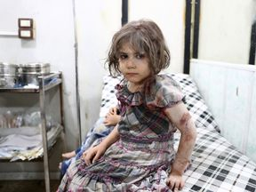TOPSHOT - An injured Syrian child poses as she awaits treatment at a makeshift hospital following a reported air stike on the rebel-held town of Douma, east of the capital Damascus, on August 23, 2016. / AFP / Abd Doumany (Photo credit should read ABD DOUMANY/AFP/Getty Images)