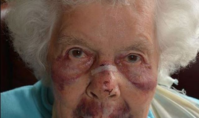 Police release pictures of pensioner's injuries after violent robbery