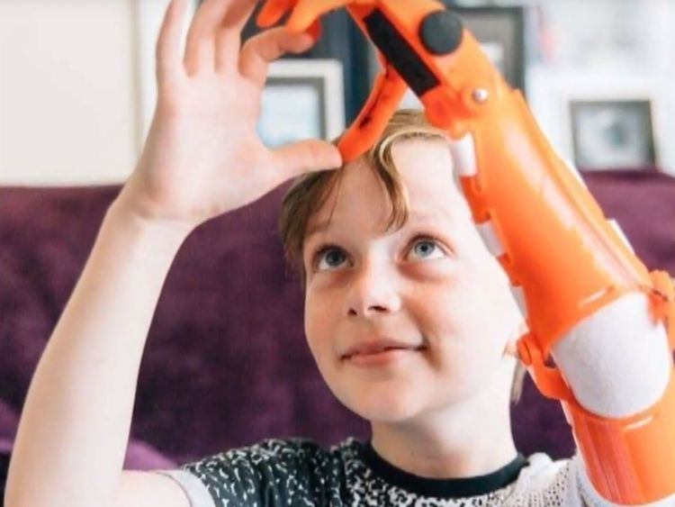 Jamie Miller helps his father design and build his bionic limbs
