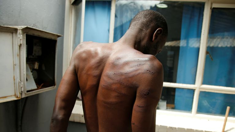 An arrested injured man is seen at a hospital following protests in Harare