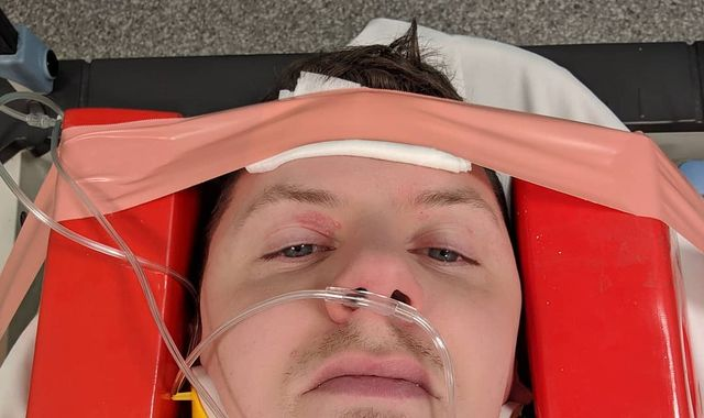 Professor Green cancels tour after suffering seizures and fracturing neck