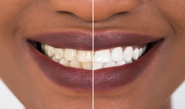 Consumers 'gambling with their teeth' by using whitening kits