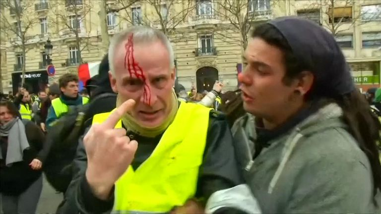 Major clashes in Paris leave people on both sides with serious injuries as  battles between