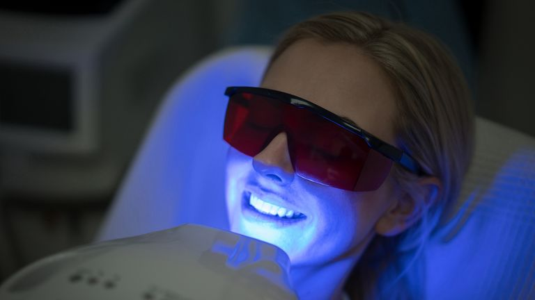 Many consumers have sought at-home alternatives to professional whitening treatments. File pic