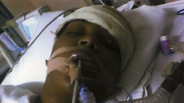 Kara Hoyte in hospital after the attack