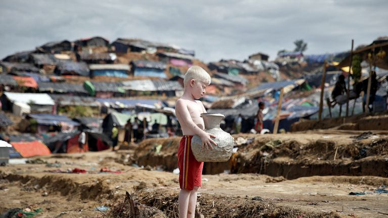 An albino Rohingya refugee poses for a picture in Cox's Bazar, Bangladesh