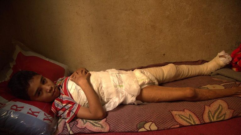 Saleh, 12, was burned after a bomb fell on his home in Yemen. Pic: Save the Children