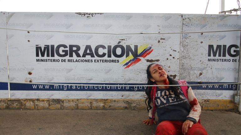 A woman lies injured amid tensions at the Simon Bolivar bridge on the border of Colombia and Venezuela