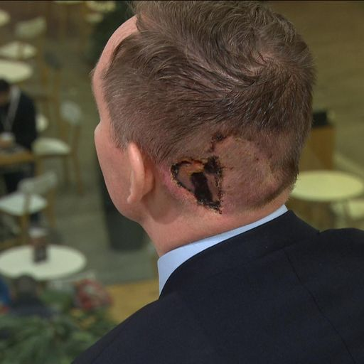 :Labour MP in tears over skin cancer diagnosis
