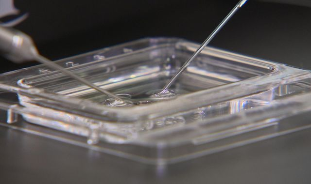 Calls for IVF treatment to face further regulation