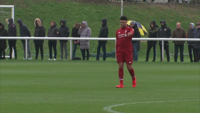 Alex Oxlade-Chamberlain substituted in first half on Liverpool comeback | Football News |
