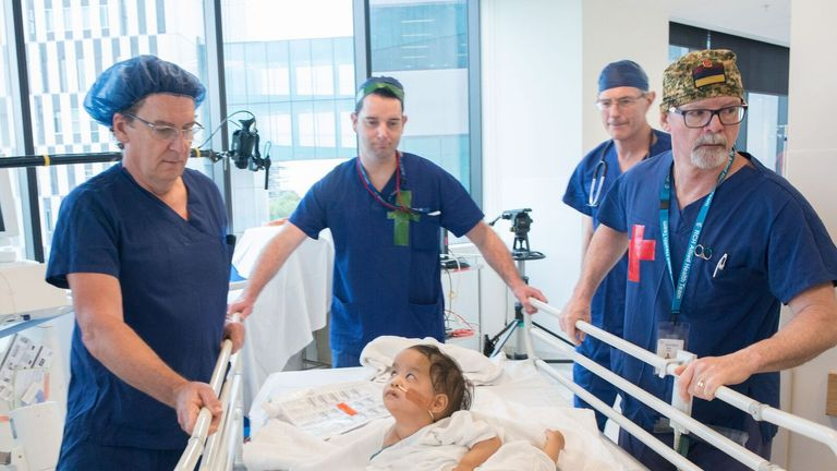 The twins underwent surgery in Australia. Pic: Children First Foundation