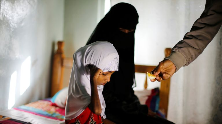 "Afaf Hussein, 10, who is malnourished, sits next to her stepmother as her father Hussein Abdu, 40, gives her a slice of an orange at a hotel in Sanaa, Yemen, February 14, 2019. Afaf, who now weighs around 11 kg and is described by her doctor as ""skin and bones"", has been left acutely malnourished by a limited diet during her growing years and suffering from hepatitis, likely caused by infected water. She left school two years ago because she got too weak. ""Before the war we managed to get food b"