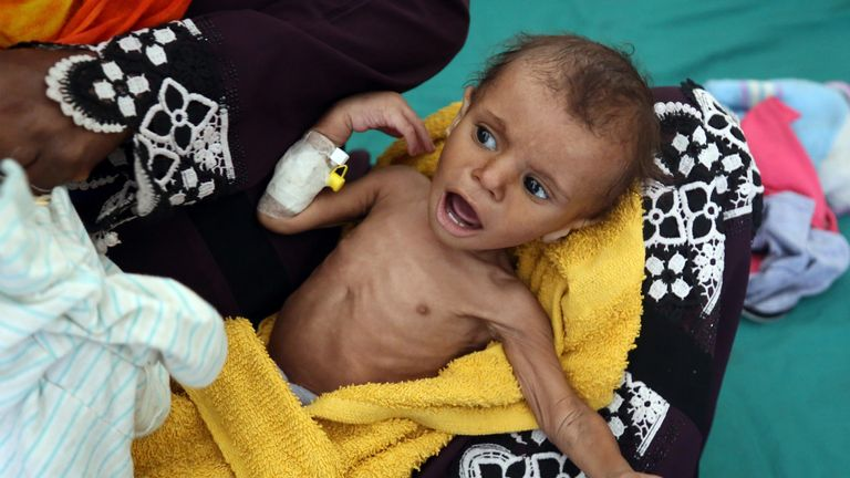 Yemeni child suffers from malnutrition