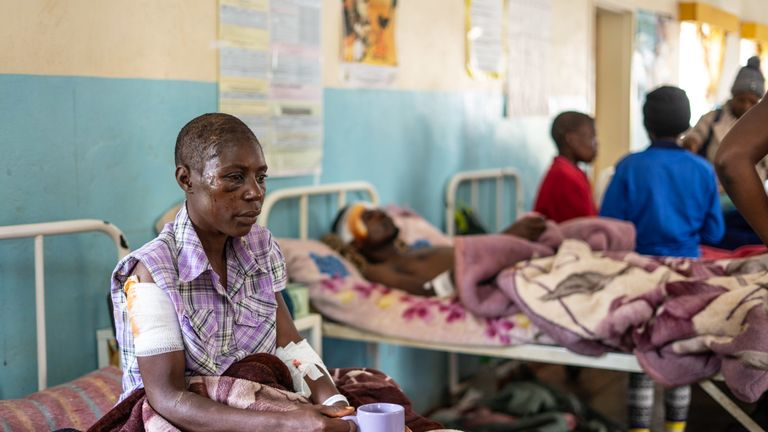 Praise Chipore, 31, a cyclone survivor, sits on a hospital bed at Chimanimani Rural district hospital, Manicaland Province, eastern Zimbabwe, on March 18 2019, after the area was hit by the cyclone Idai. - A cyclone that ripped across Mozambique and Zimbabwe has killed at least 162 people with scores more missing. Cyclone Idai tore into the centre of Mozambique on the night of March 14 before barreling on to neighbouring Zimbabwe, bringing flash floods and ferocious winds, and washing away roads