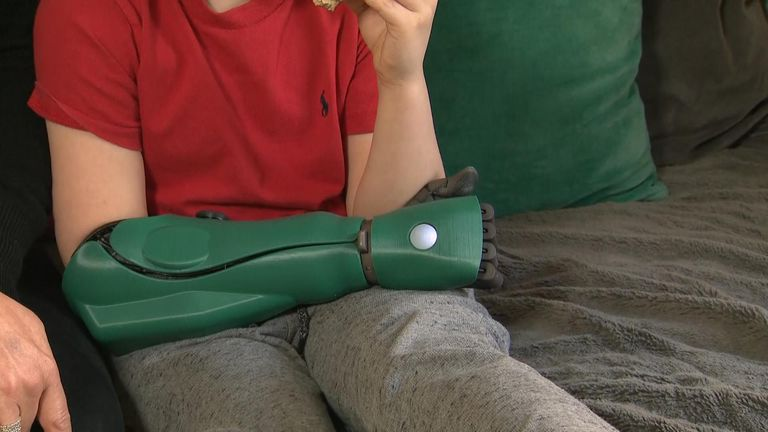 After years with a prosthetic hand, eight-year-old Freddie Payne can grip the handlebars of his scooter and go climbing with his friends.