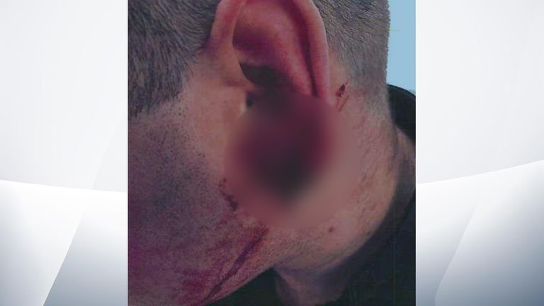 The officer's ear required surgery after the attack. Pic: Cheshire Police